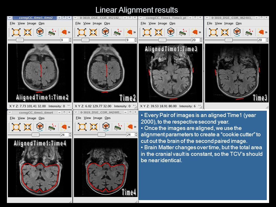 Linear Alignment results Every Pair of images is an aligned Time1 (year 2000), to the respective second year. Once the images are aligned, we use the