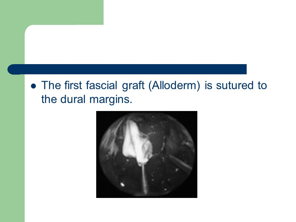 The first fascial graft (Alloderm) is sutured to the dural margins.