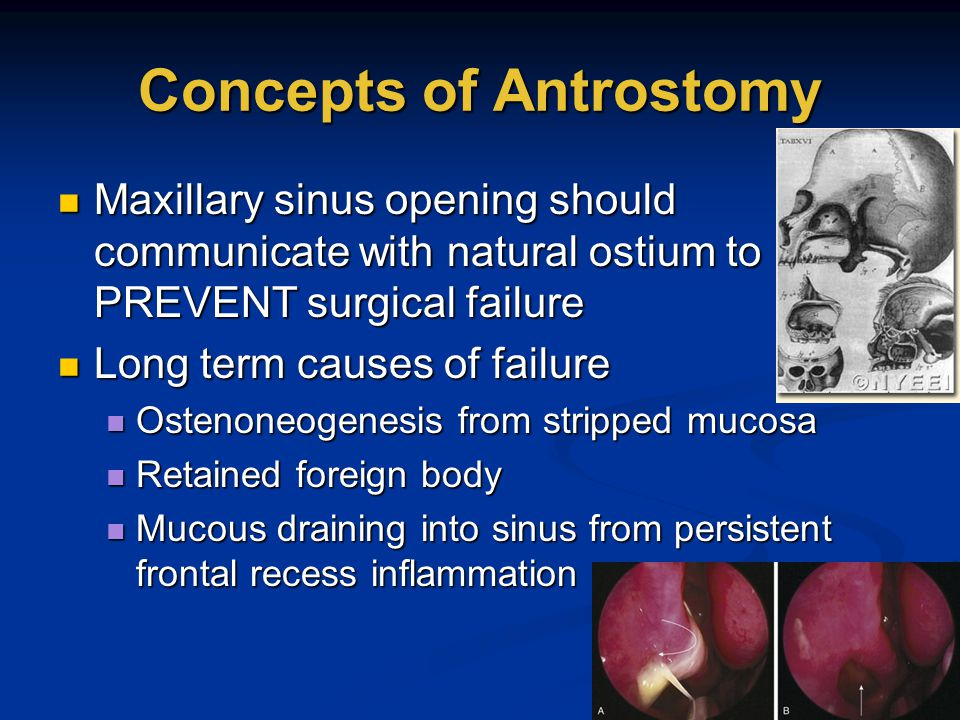Concepts of Antrostomy Maxillary sinus opening should communicate with natural ostium to PREVENT surgical failure Maxillary sinus opening should commu