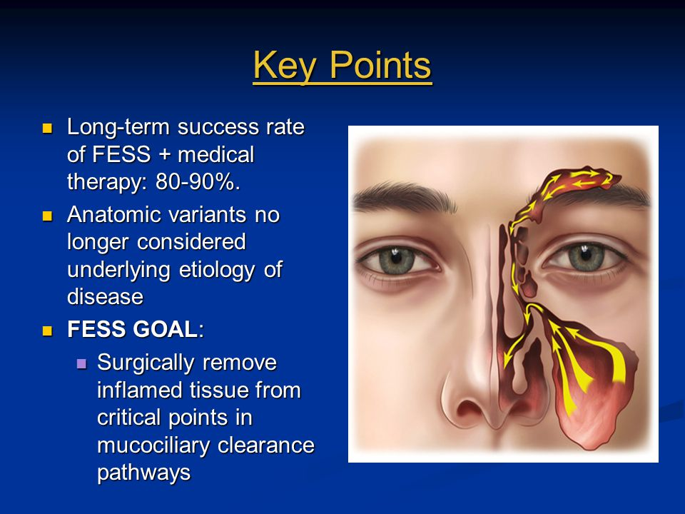 Key Points Long-term success rate of FESS + medical therapy: 80-90%. Long-term success rate of FESS + medical therapy: 80-90%. Anatomic variants no lo