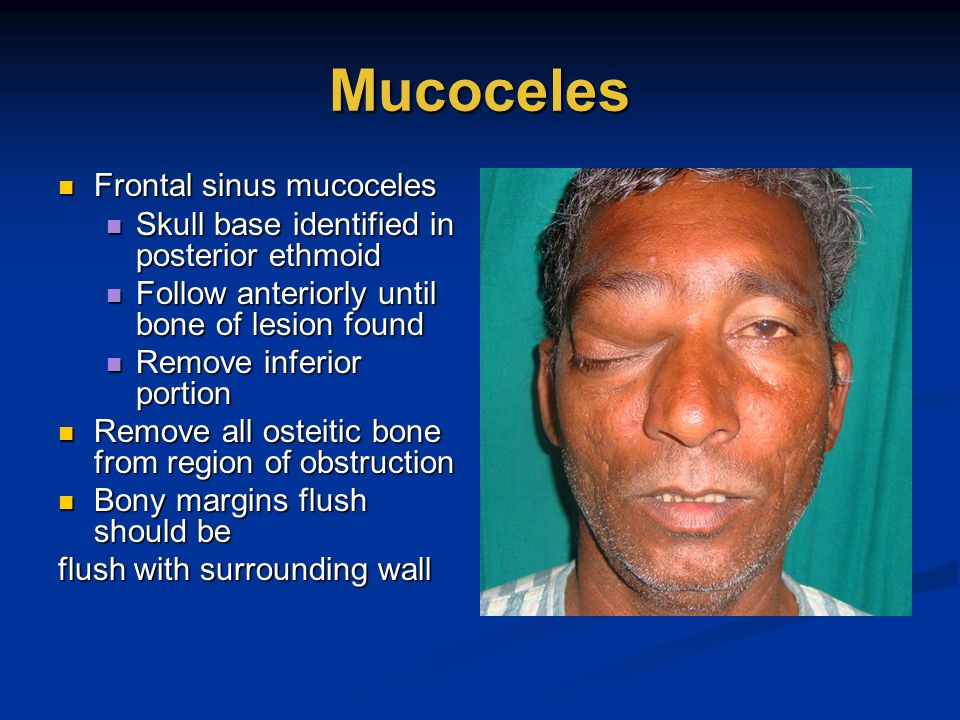 Mucoceles Frontal sinus mucoceles Frontal sinus mucoceles Skull base identified in posterior ethmoid Skull base identified in posterior ethmoid Follow