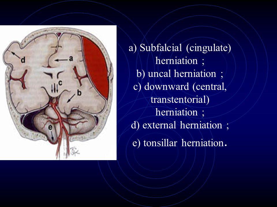 a) Subfalcial (cingulate) herniation ; b) uncal herniation ; c) downward (central, transtentorial) herniation ; d) external herniation ; e) tonsillar
