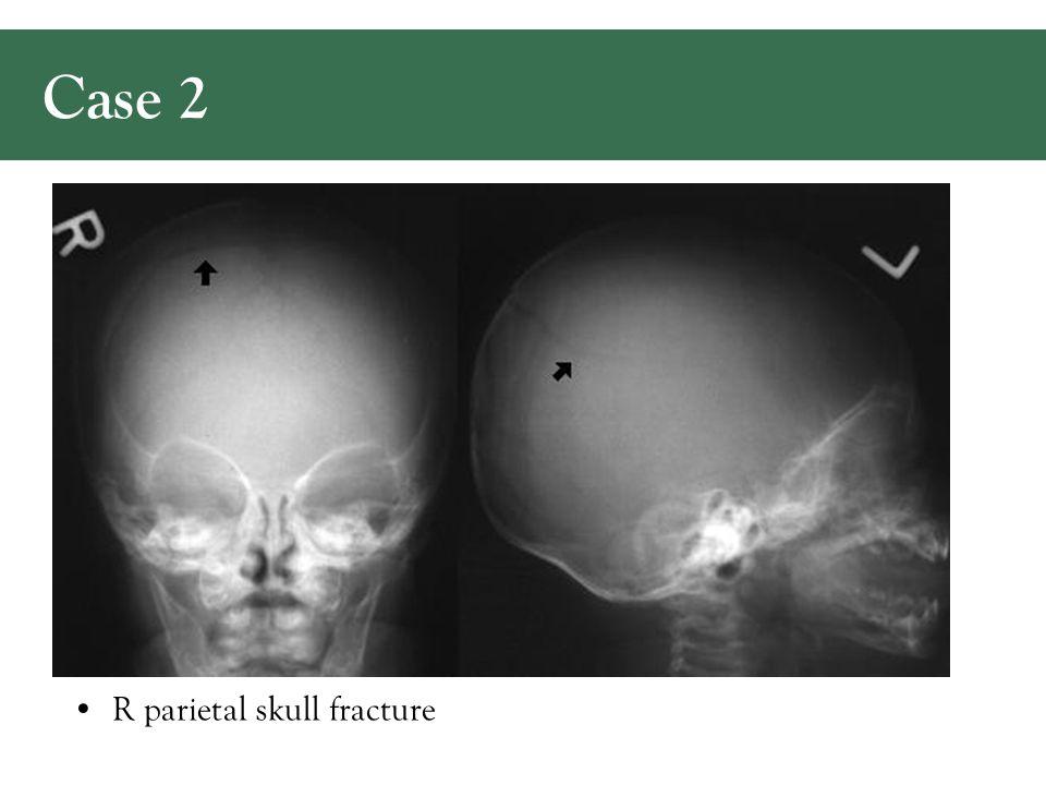 R parietal skull fracture