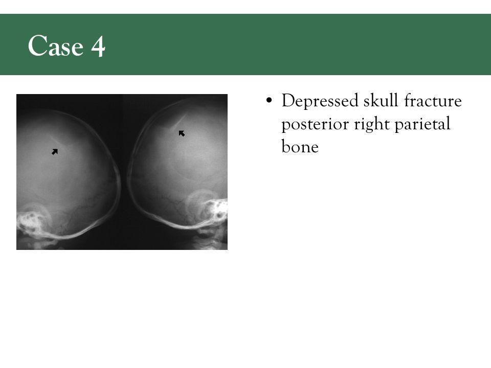 Depressed skull fracture posterior right parietal bone