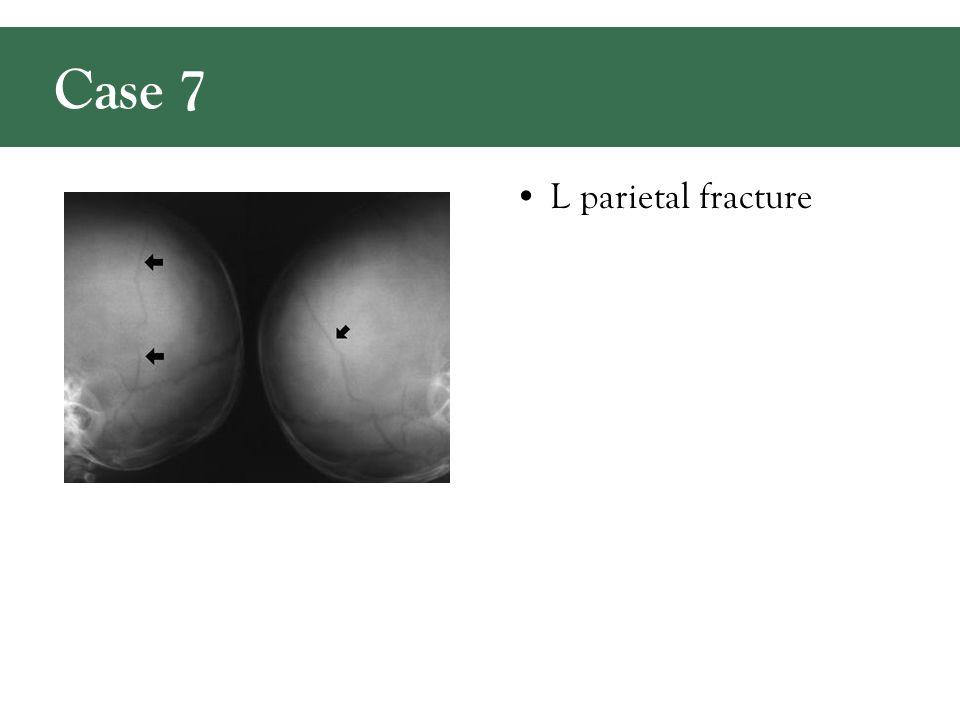 L parietal fracture