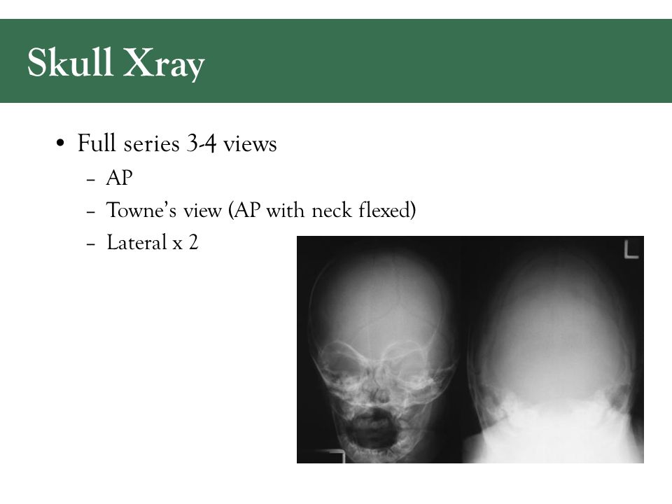 Skull Xray Full series 3-4 views –AP –Towne's view (AP with neck flexed) –Lateral x 2