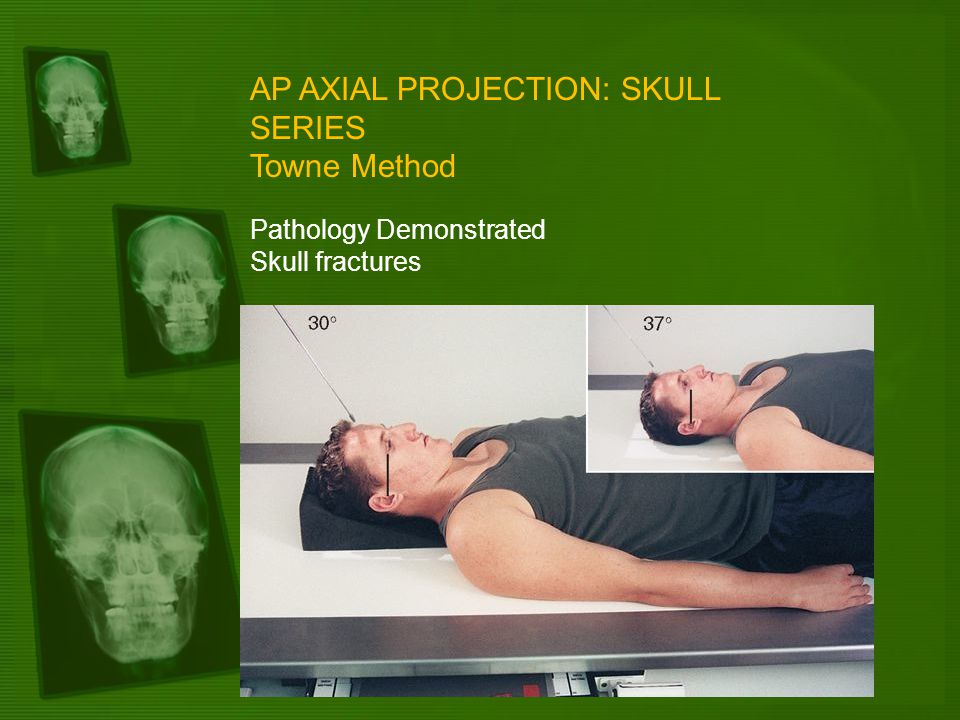 AP AXIAL PROJECTION: SKULL SERIES Towne Method Pathology Demonstrated Skull fractures