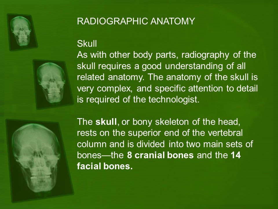 RADIOGRAPHIC ANATOMY Skull As with other body parts, radiography of the skull requires a good understanding of all related anatomy. The anatomy of the