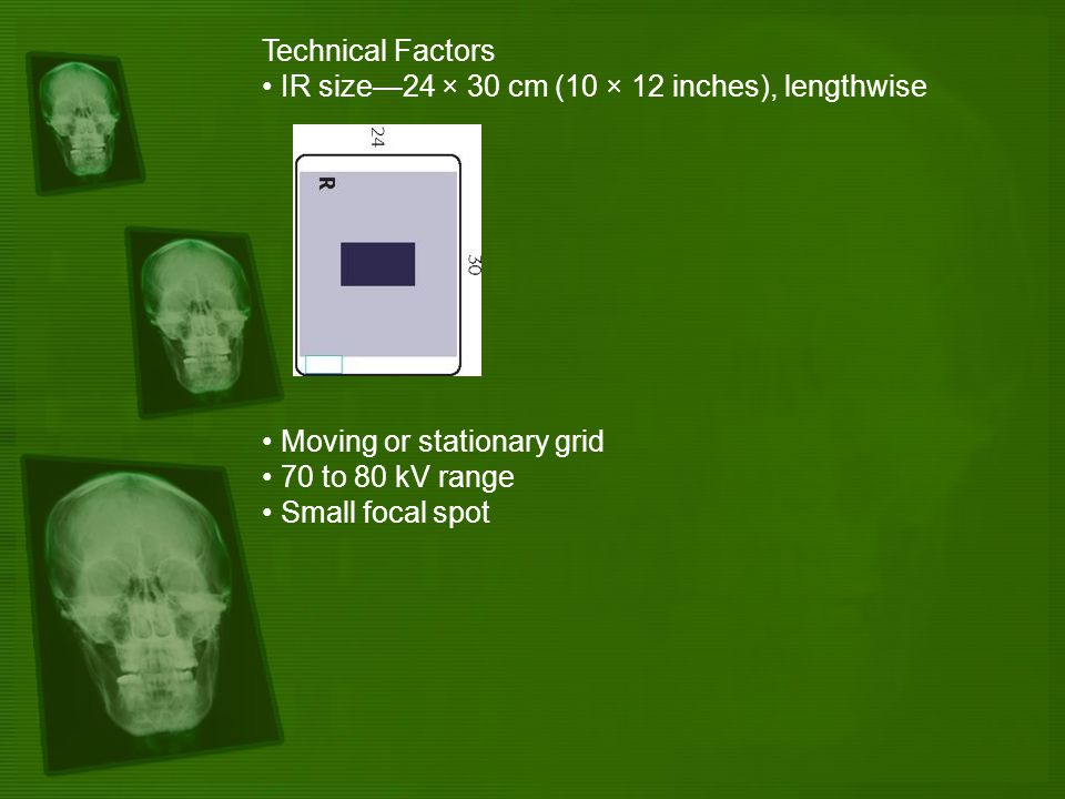 Technical Factors IR size—24 × 30 cm (10 × 12 inches), lengthwise Moving or stationary grid 70 to 80 kV range Small focal spot