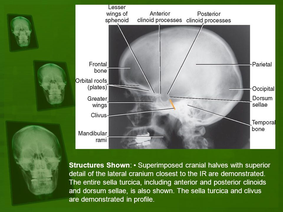 Structures Shown: Superimposed cranial halves with superior detail of the lateral cranium closest to the IR are demonstrated. The entire sella turcica