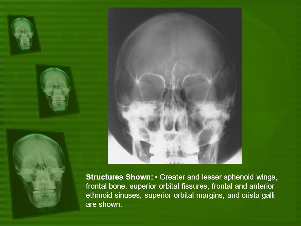 Structures Shown: Greater and lesser sphenoid wings, frontal bone, superior orbital fissures, frontal and anterior ethmoid sinuses, superior orbital m