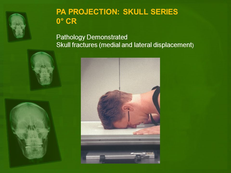 PA PROJECTION: SKULL SERIES 0° CR Pathology Demonstrated Skull fractures (medial and lateral displacement )