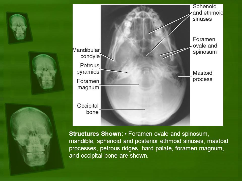 Structures Shown: Foramen ovale and spinosum, mandible, sphenoid and posterior ethmoid sinuses, mastoid processes, petrous ridges, hard palate, forame