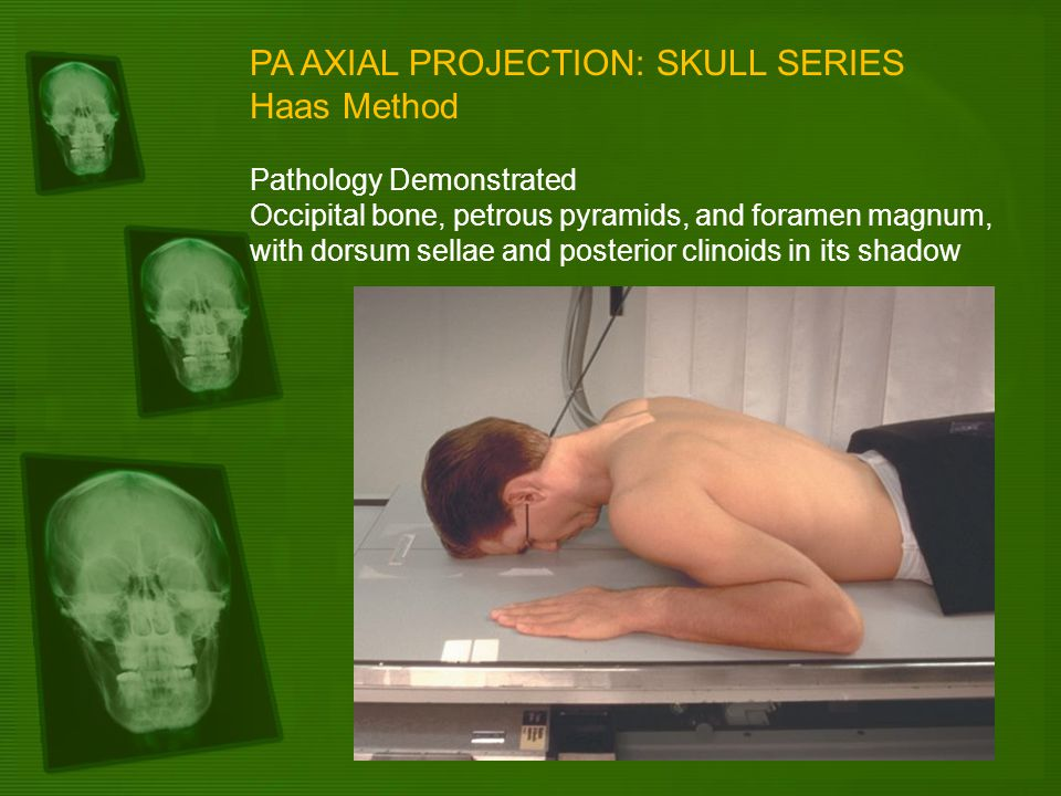 PA AXIAL PROJECTION: SKULL SERIES Haas Method Pathology Demonstrated Occipital bone, petrous pyramids, and foramen magnum, with dorsum sellae and post
