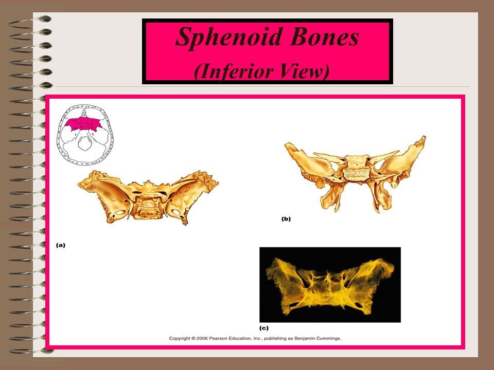 Sphenoid Bones (Inferior View)