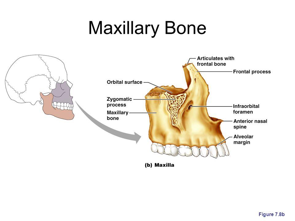 Maxillary Bone Figure 7.8b