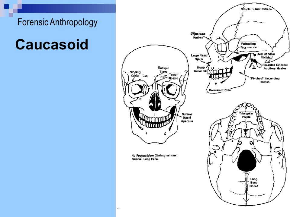 Caucasoid Forensic Anthropology
