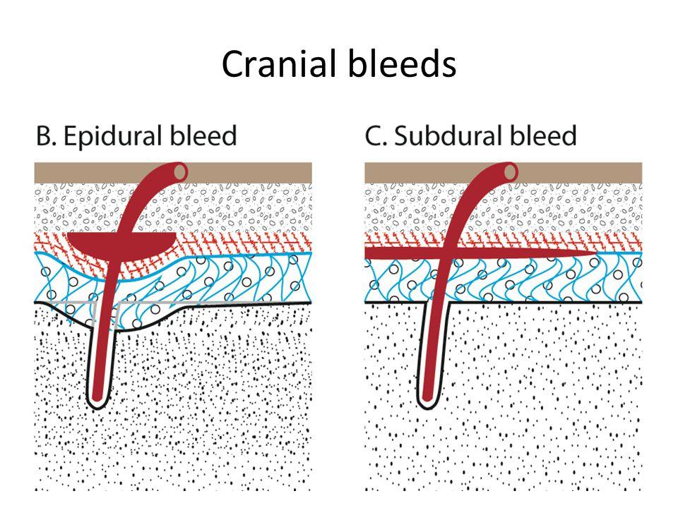 Cranial bleeds