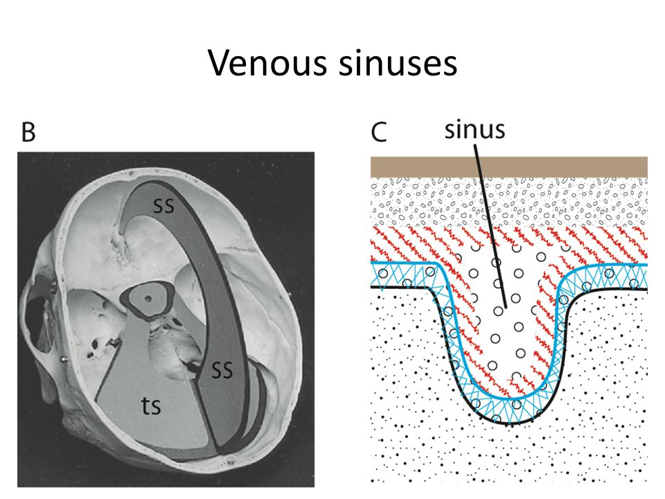 Venous sinuses