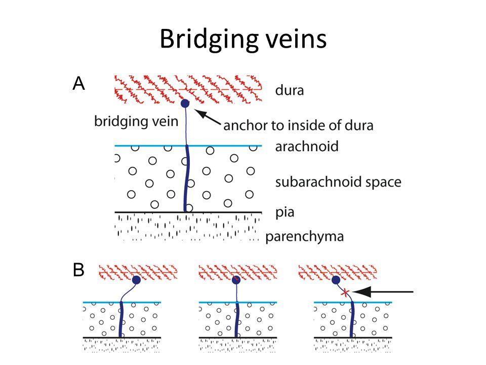 Bridging veins A B