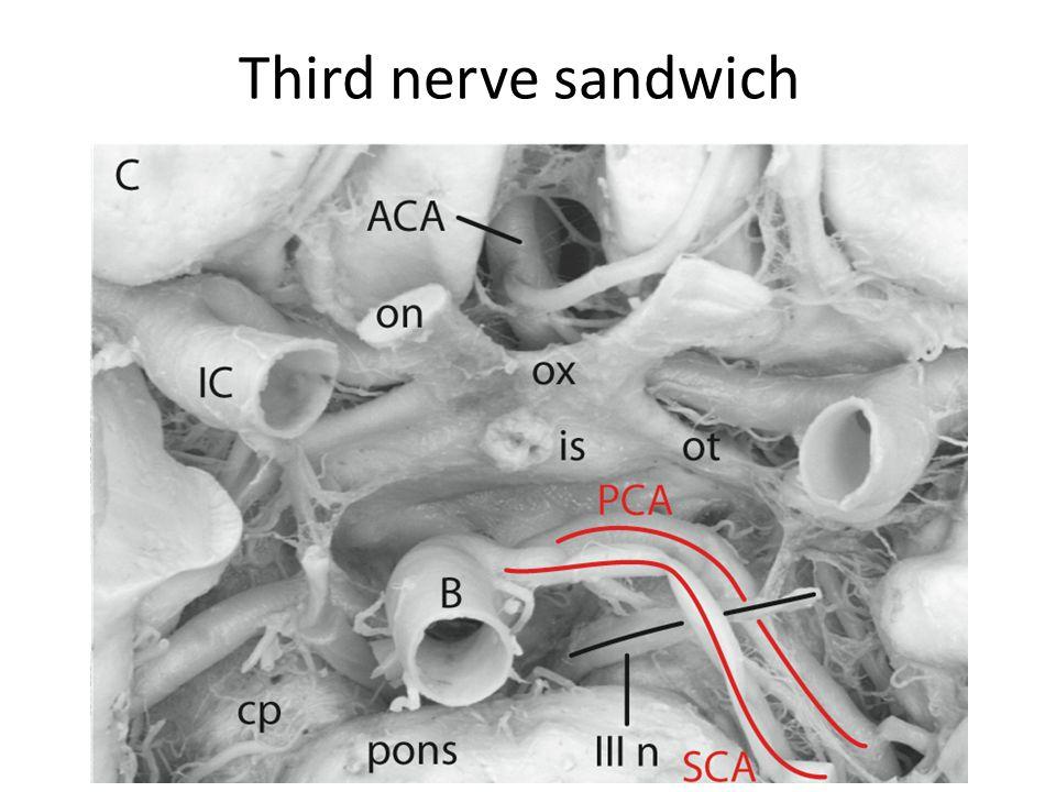 Third nerve sandwich