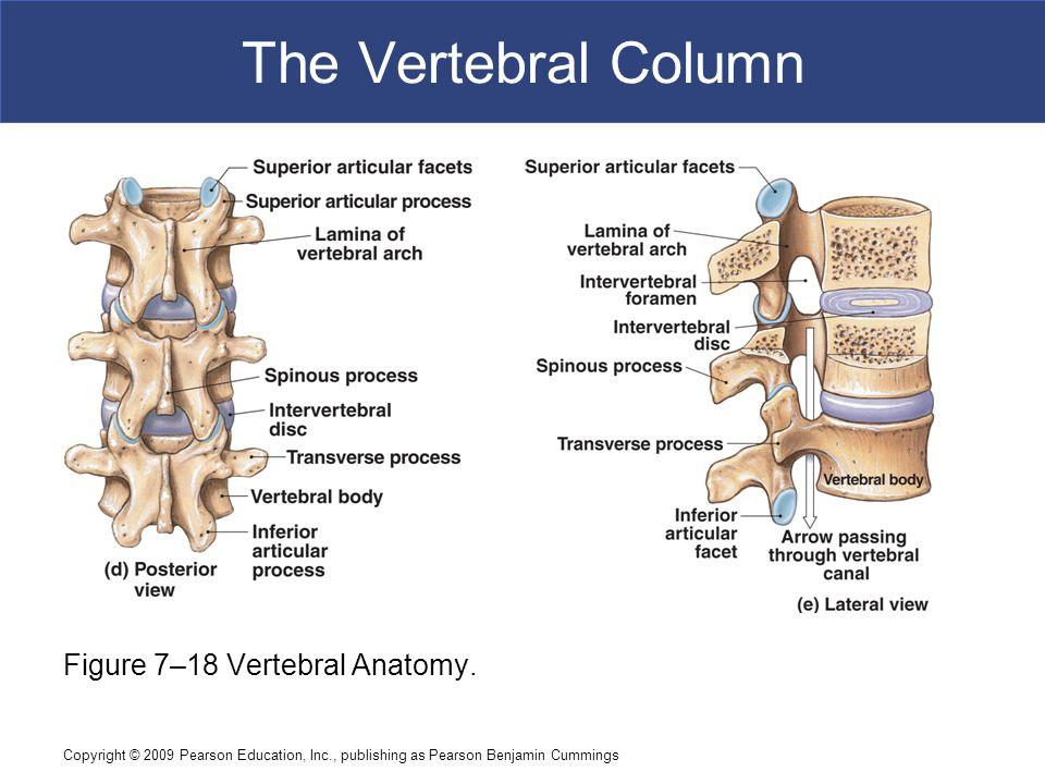 Copyright © 2009 Pearson Education, Inc., publishing as Pearson Benjamin Cummings The Vertebral Column Figure 7–18 Vertebral Anatomy.