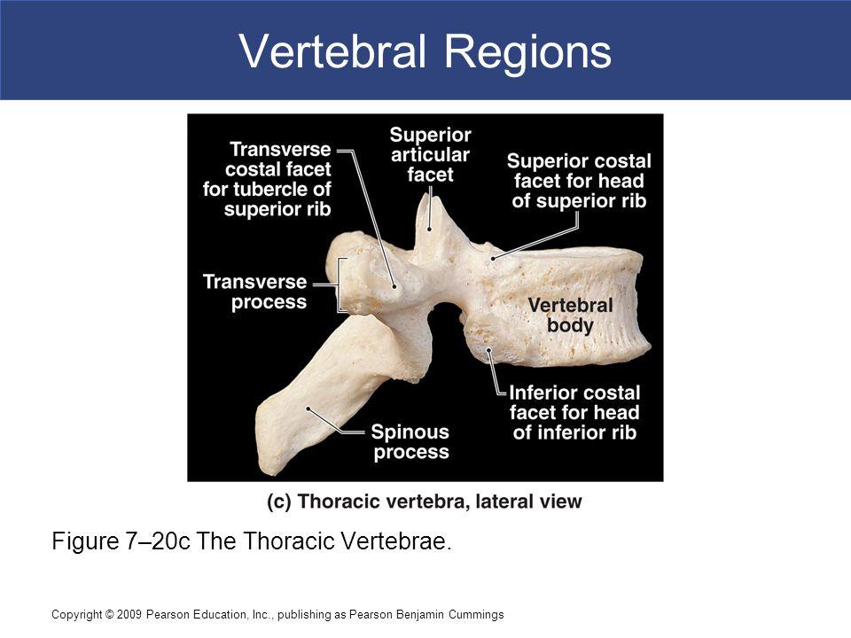 Copyright © 2009 Pearson Education, Inc., publishing as Pearson Benjamin Cummings Vertebral Regions Figure 7–20c The Thoracic Vertebrae.