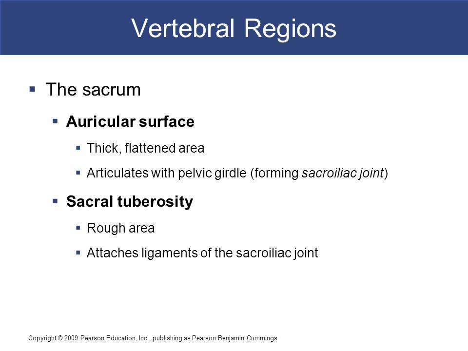 Copyright © 2009 Pearson Education, Inc., publishing as Pearson Benjamin Cummings Vertebral Regions  The sacrum  Auricular surface  Thick, flattene