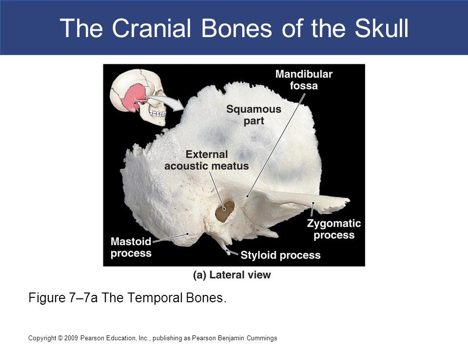 Copyright © 2009 Pearson Education, Inc., publishing as Pearson Benjamin Cummings The Cranial Bones of the Skull Figure 7–7a The Temporal Bones.