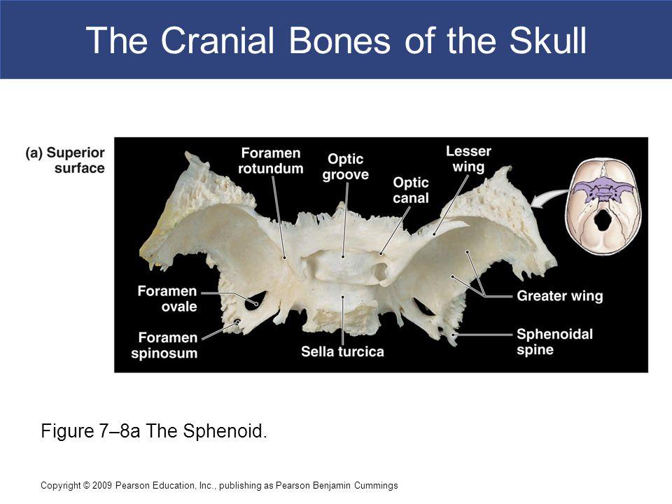 Copyright © 2009 Pearson Education, Inc., publishing as Pearson Benjamin Cummings The Cranial Bones of the Skull Figure 7–8a The Sphenoid.