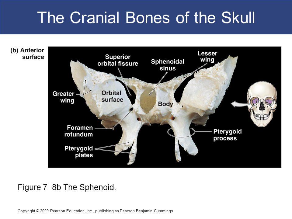 Copyright © 2009 Pearson Education, Inc., publishing as Pearson Benjamin Cummings The Cranial Bones of the Skull Figure 7–8b The Sphenoid.