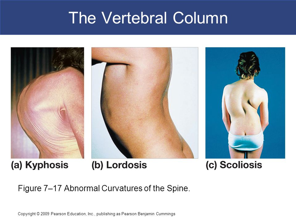 Copyright © 2009 Pearson Education, Inc., publishing as Pearson Benjamin Cummings The Vertebral Column Figure 7–17 Abnormal Curvatures of the Spine.