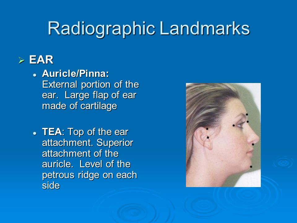 Radiographic Landmarks  EAR Auricle/Pinna: External portion of the ear. Large flap of ear made of cartilage Auricle/Pinna: External portion of the ea