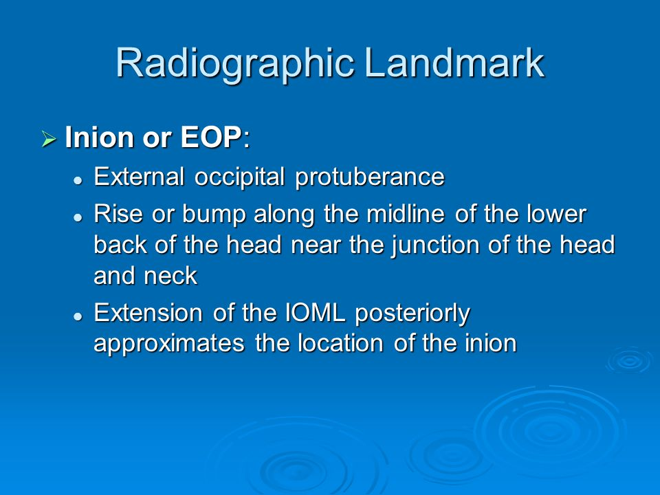 Radiographic Landmark  Inion or EOP: External occipital protuberance External occipital protuberance Rise or bump along the midline of the lower back