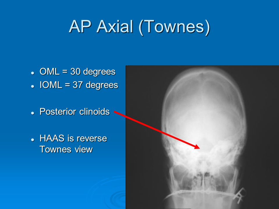 AP Axial (Townes) OML = 30 degrees OML = 30 degrees IOML = 37 degrees IOML = 37 degrees Posterior clinoids Posterior clinoids HAAS is reverse Townes v