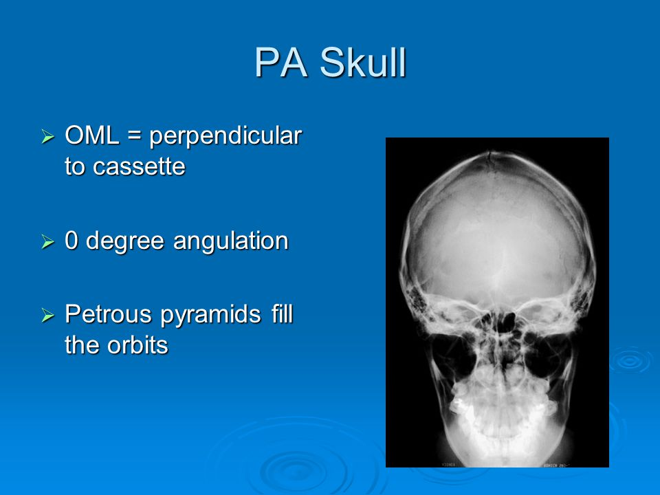 PA Skull  OML = perpendicular to cassette  0 degree angulation  Petrous pyramids fill the orbits