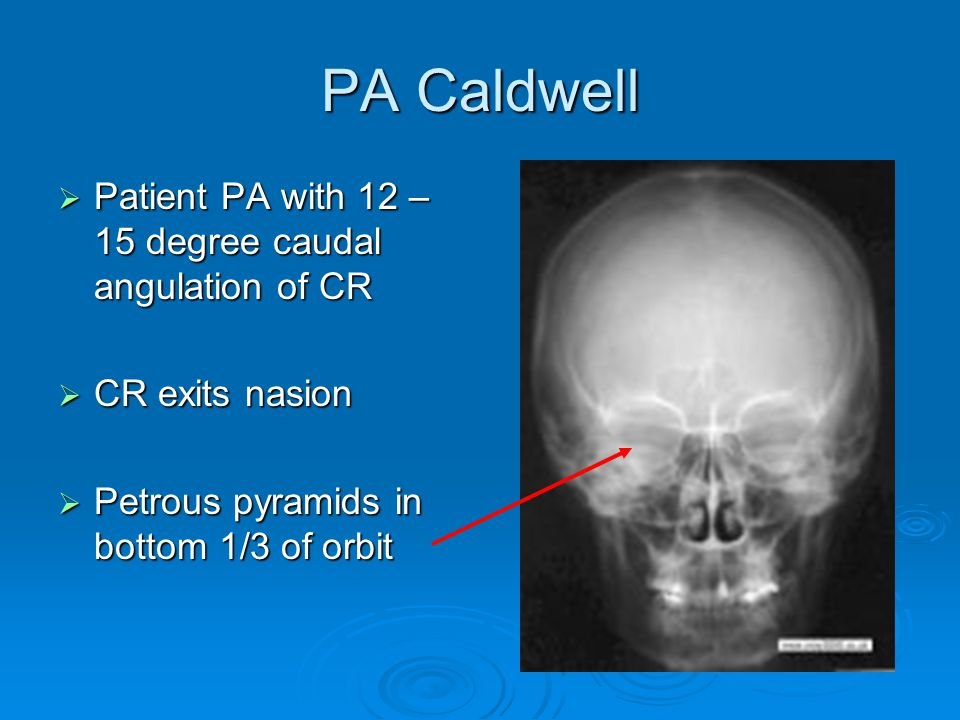 PA Caldwell  Patient PA with 12 – 15 degree caudal angulation of CR  CR exits nasion  Petrous pyramids in bottom 1/3 of orbit