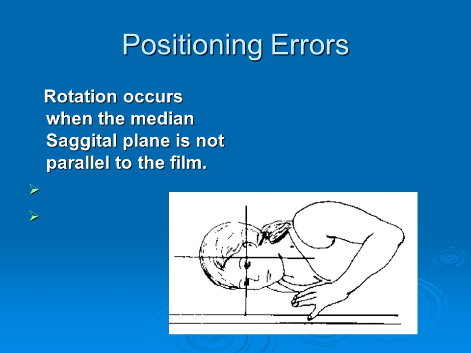 Positioning Errors Rotation occurs when the median Saggital plane is not parallel to the film. Rotation occurs when the median Saggital plane is not p