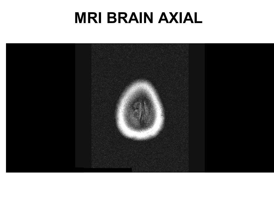 MRI BRAIN AXIAL