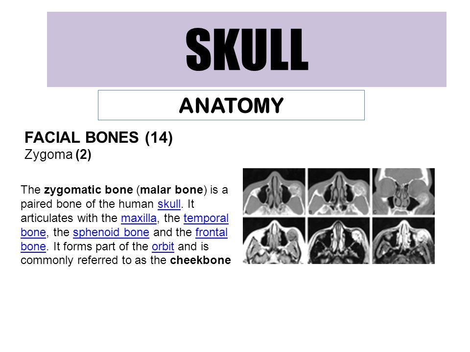 SKULL ANATOMY FACIAL BONES (14) Zygoma (2) The zygomatic bone (malar bone) is a paired bone of the human skull. It articulates with the maxilla, the t