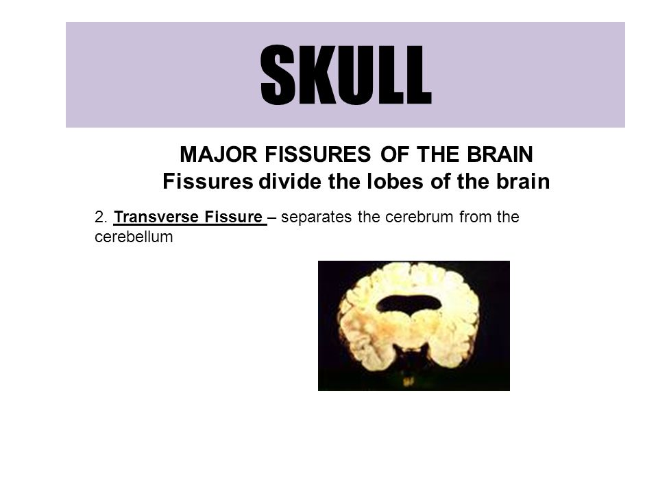 SKULL MAJOR FISSURES OF THE BRAIN Fissures divide the lobes of the brain 2.