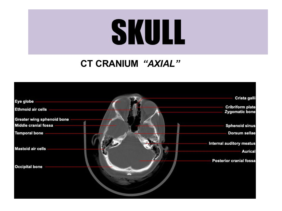 """SKULL CT CRANIUM """"AXIAL"""""""