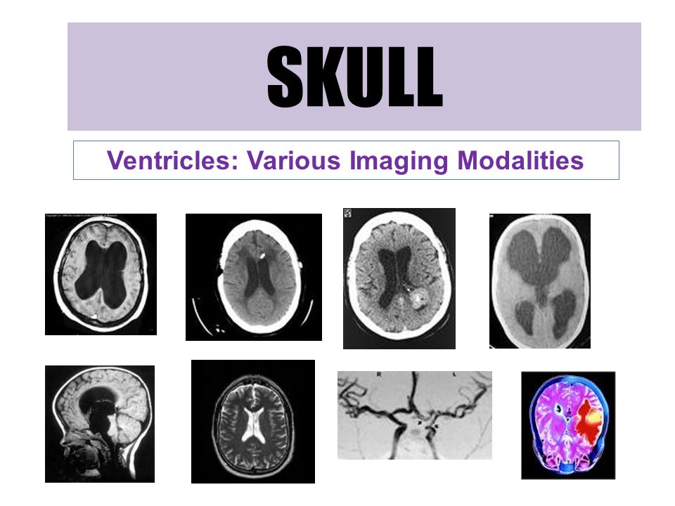 SKULL Ventricles: Various Imaging Modalities