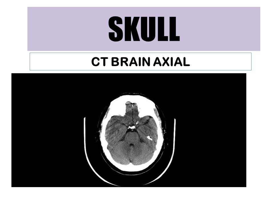 SKULL CT BRAIN AXIAL
