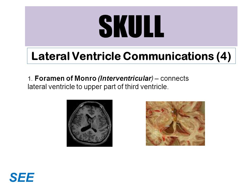 SKULL Lateral Ventricle Communications (4) 1.