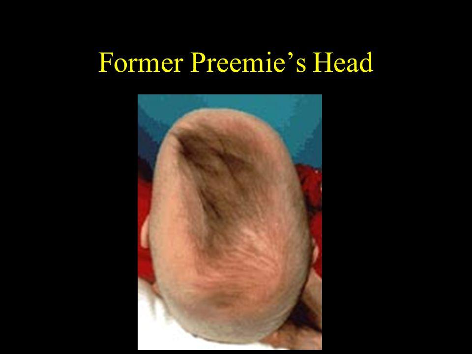 Former Preemie's Head