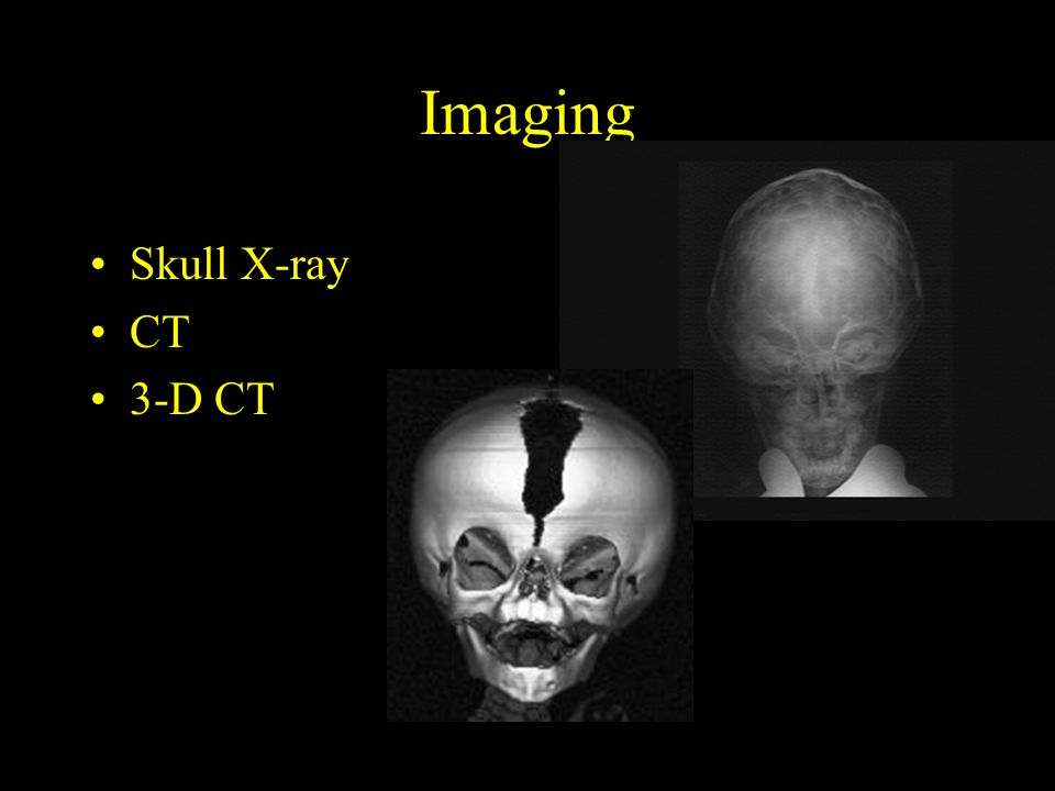 Imaging Skull X-ray CT 3-D CT