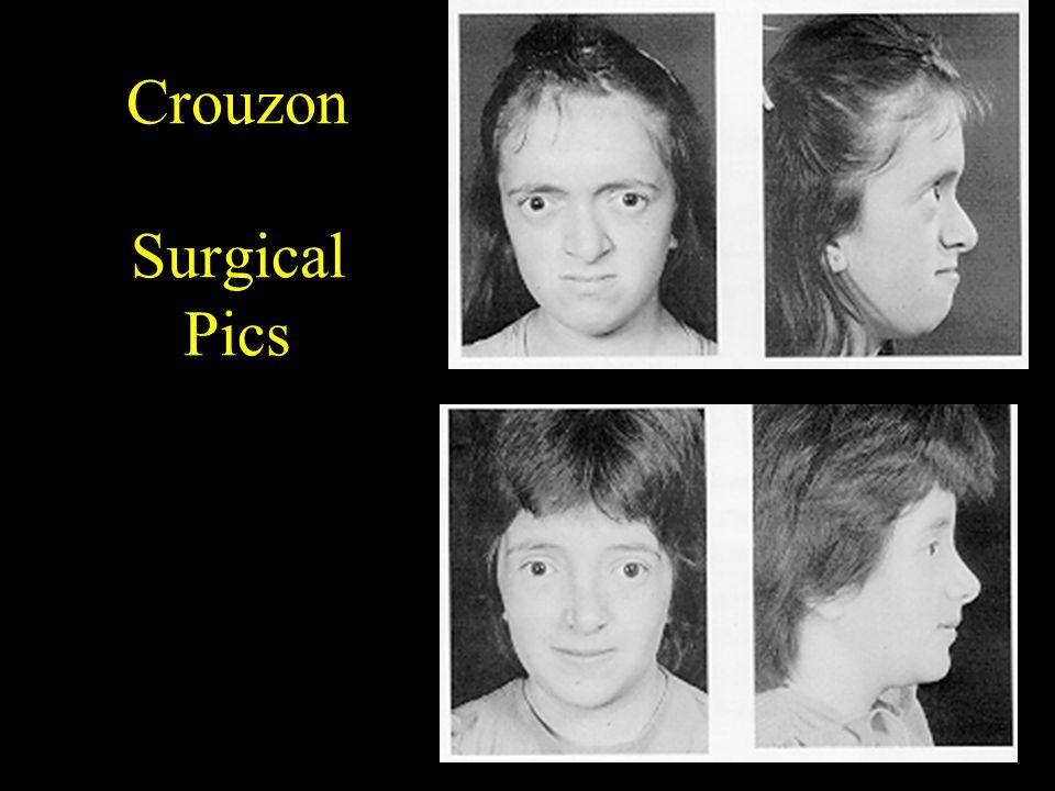 Crouzon Surgical Pics