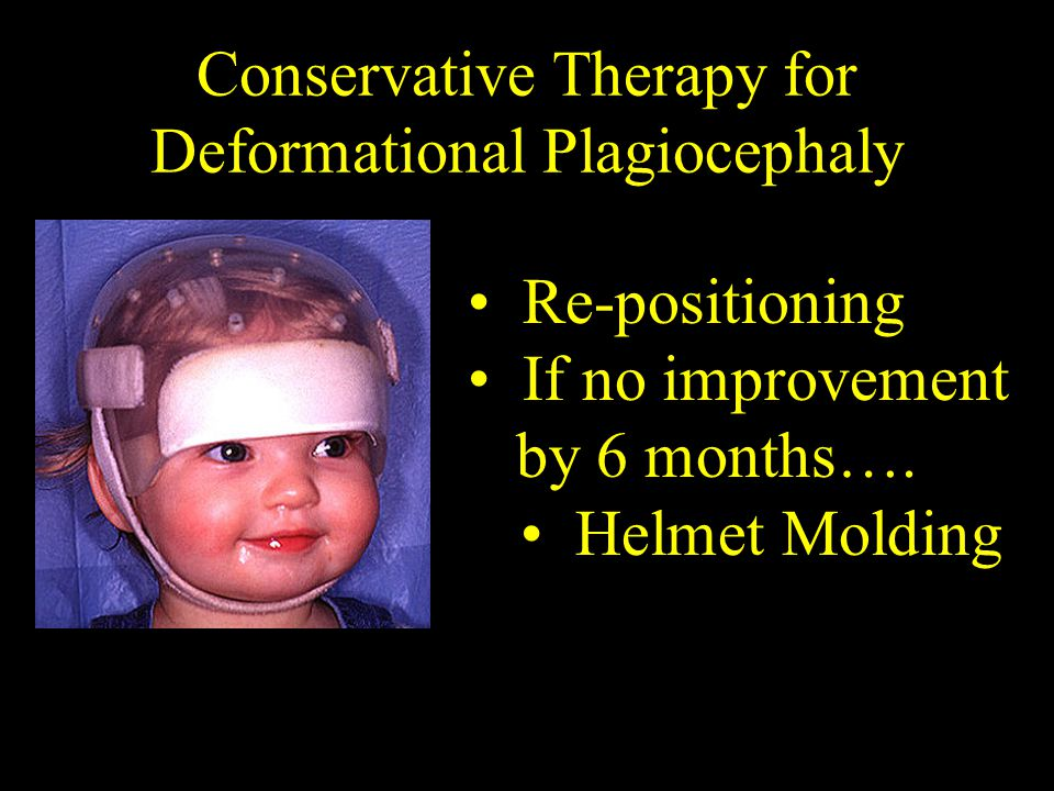 Conservative Therapy for Deformational Plagiocephaly Re-positioning If no improvement by 6 months….