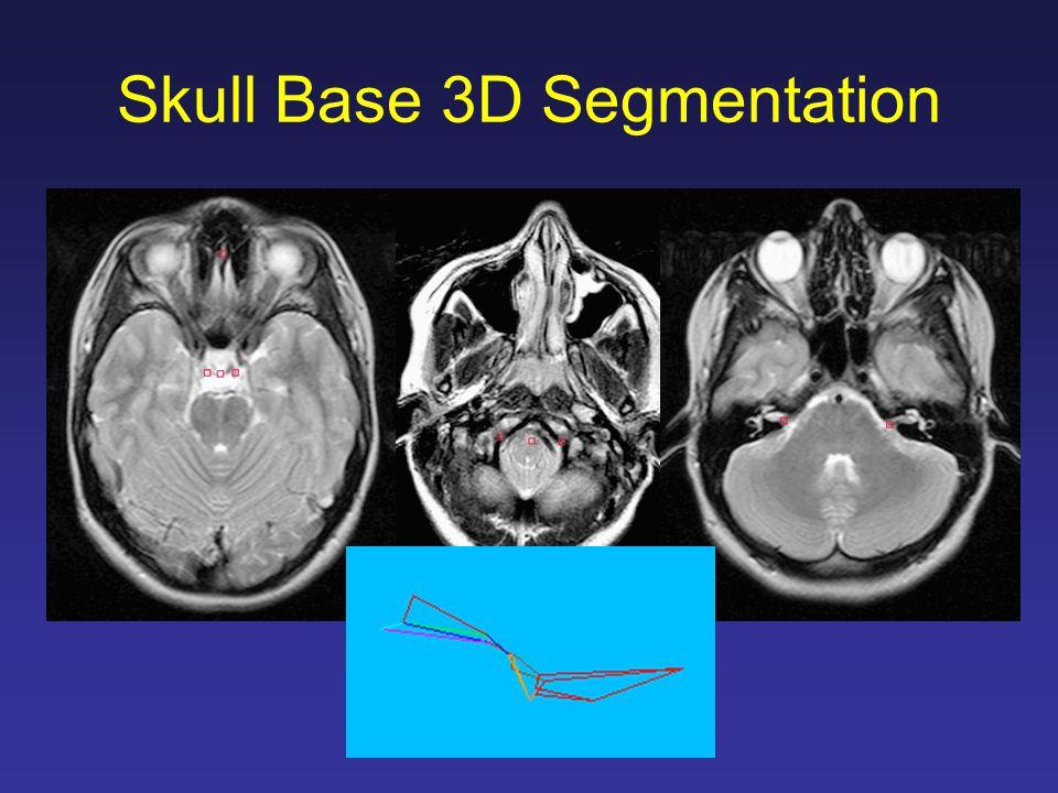 Skull Base 3D Segmentation
